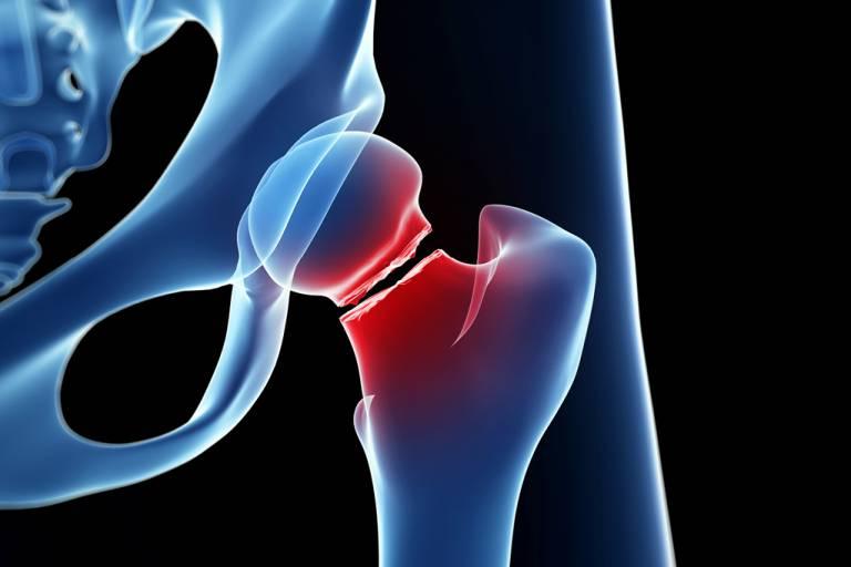 como-o-osso-quebrado-se-regenera